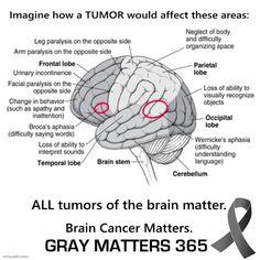 Imagine if a tumor...