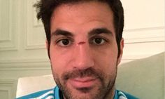 Fabregas reveals nasty gash on his nose after being caught Adam