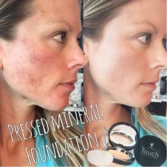 Younique Touch Mineral Pressed Powder has some serious coverage. ...AND is 100% natural! This is 1 day post chemical peel, with ONLY the pressed powder! AMAZING! I'm in love! www.carrieyourbeauty.com