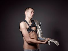 Five electrodes read Young's muscle contractions, allowing him to move the 3D-printed hand much like a normal one.