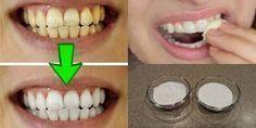 Resultado garantido! Clareie seus dentes em menos de 3 minutos!   Cura pela Natureza
