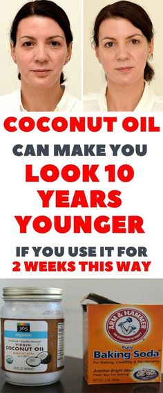Use Coconut Oil Daily - - This Is How To Use Coconut Oil And Baking Soda To Look 10 Years Younger 9 Reasons to Use Coconut Oil Daily Coconut Oil Will Set You Free — and Improve Your Health!Coconut Oil Fuels Your Metabolism! Baking With Coconut Oil, Coconut Oil Uses For Skin, Les Rides, Look Younger, Younger Skin, Hair Loss, Body Lotion, Skin Care Tips, Healthy Skin