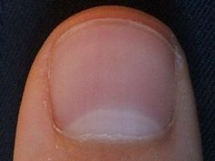I raised a bit of a ruckus last week at a women's business network meeting when I asked a panel of health experts if having no fingernail moons meant you were low in iodine, and hence, more l…