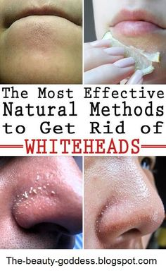 How to Get Rid of Whiteheads Naturally - The Beauty Goddess Whitehead Removal, Get Rid Of Pores, Facial Warts, Exfoliate Face, Beauty Regimen, Beauty Products, Good Skin, Beauty Skin, Skin Products