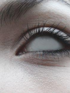 { Thia's left eye }