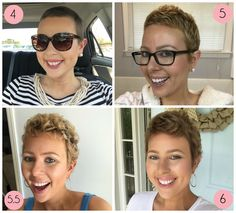 Post-Chemo Hair Growth & Styling Tips - Struggling to grow & style your short hair after chemo? Here are all the tips and products you need to grow and style your hair after chemo. Hair Growth After Chemo, Chemo Hair Loss, Growing Hair After Chemo, Growing Out Hair, Help Hair Grow, Dying Your Hair, Regrow Hair, Hair Starting, Hair Regrowth