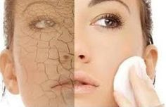 6 home remedies to get rid of dry skin on face