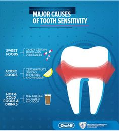 Tooth sensitivity/Dentin Hypersensitivity Have you ever felt pain or discomfort after a bite of ice cream or a spo. Dental Jokes, Tooth Sensitivity, Tooth Pain, Receding Gums, Dental Bridge, Dental Health, Dental Crowns, Brushing, Grinding