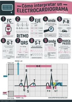 Cómo interpretar un electrocardiograma | ENFERMERIA CREATIVA