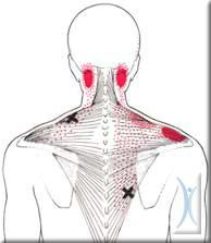 If you like doing trigger point therapy this is the best website! http://www.triggerpointmaps.com/tp_finder.html