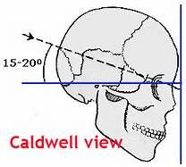 Skull X-ray Positioning | Skull Positioning | anatomical ...