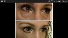 2min Results With Instantly Ageless  Watch the 2min video: http://JustJawDropping.com