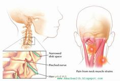 Search of Solution For Neck Pain Medical Science, Neck Pain, Physical Fitness, Clinic, Search, Medicine, Searching