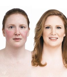 before and after- Jane Iredale