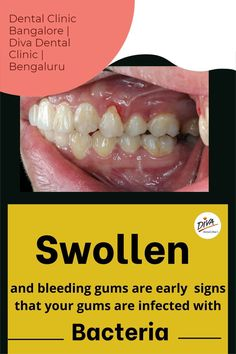 Gingivitis. Gingivitis is the most common cause of swollen gums. It's a gum disease that causes your gums to become irritated and swollen. Best Dentist, Dentist In, Swollen Gum, Dental Care, Clinic, Diva, Marketing, Dental Caps, Dental Health
