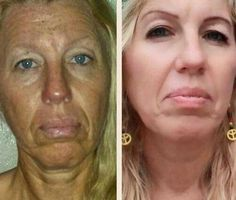Face Massaging Exercises Will Transform A Drooping Face And Eradicate Wrinkles