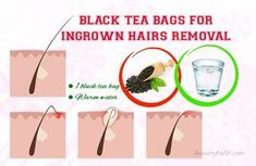 Top 24 Ways How To Get Rid Of Ingrown Hairs Fast and Naturally