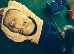 Acorda Cidade | Dilton Coutinho | Baiano de 37 anos nasceu com a cabeça virada para baixo
