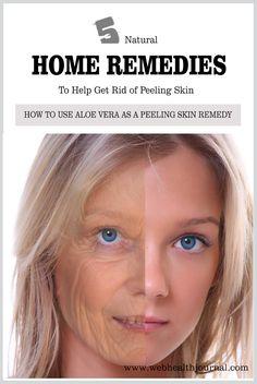 Top 5 Natural Home Remedies To Help Get Rid of Peeling Skin