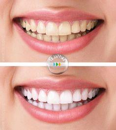Blanqueamiento dental con cúrcuma. ¿Quieres una sonrisa deslumbrante? Gracias al Blanqueamiento dental con cúrcuma es posible.Después de un cepillado de 3