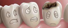 Çürük Dişten Şikayetçiyseniz Bol Su İçin - http://www.tnoz.com/curuk-disten-sikayetciyseniz-bol-su-icin-59054/