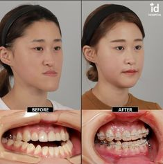 jaw surgery in Korea Severe malocclusion and asymmetry fixed by double jaw surgery, ID Hospital.Severe malocclusion and asymmetry fixed by double jaw surgery, ID Hospital. Dental Implant Procedure, Dental Implants, V Line Surgery, Braces Before And After, Double Jaw Surgery, Orthognathic Surgery, Korean Plastic Surgery, Braces Colors, Brace Face