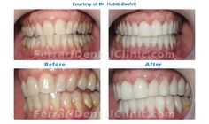 At Ferrari dental clinic headed by Dr. Habib Zarifeh, we provide our patients with Hollywood smile, veneers, lumineers, dentist, teeth whitening, Beirut, Lebanon, cost and price, dental veneers, porcelain veneers, composite veneers, gummy smile, top dental clinic.  Call us now and we'll make you smile the way you feel. Hotline: +96170567444 (WhatsApp ...) Email: info@ferraridentalclinic.com Website: http://www.ferraridentalclinic.com Http://www.veneersbeirutlebanon.com