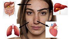 Na jaké vážnější problémy poukazují pupínky na obličeji?