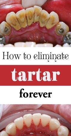 WHAT IS TARTAR? Tartar, sometimes called calculus, is plaque that has hardened on your teeth. Tartar can also form at and underneath the gumline and can irritate gum tissues. Tartar gives plaque mo… Teeth Health, Healthy Teeth, Oral Health, Dental Health, Get Healthy, Healthy Tips, Health And Wellness, Health Fitness, Dental Care