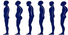 Como está a postura do seu corpo? Este é o melhor exercicio para corrigir a postura e evitar dores na coluna | Cura pela Natureza