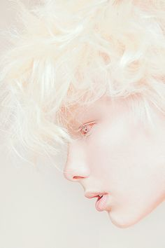 albino model Kriss Balch in The Project 'Creamy Beauty of Albinism' by Igor Klepnev – *Igor Klepnev is a Russian fashion photographer, Moscow. Modelo Albino, Pretty People, Beautiful People, Albino Model, Foto Fashion, White Aesthetic, Dark Fantasy, Oeuvre D'art, Character Inspiration