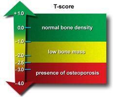 T-Scores for Osteoporosis