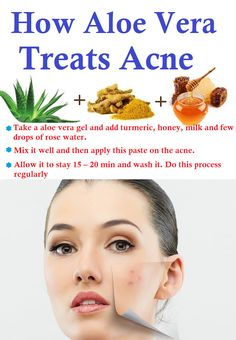 @ebay #ebayguides #GotItFree http://www.ebay.com/gds/Top-3-must-haves-for-acne-prone-skin-/10000000178505607/g.html