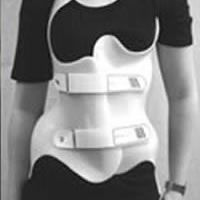 19 Best Traditional Scoliosis Treatments Images