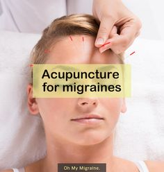 Acupuncture can stop ongoing #migraine attacks and might give you more headache-free days. Learn how to get started: ohmymigraine.com/acupuncture