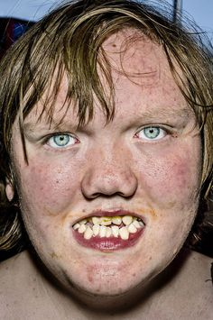 Extremely raw series of portraits by New York-based photographer Bruce Gilden. Taken between 2012 and 2014 during his travels in America, the United Kingdom and Colombia. More images below. Bruce Gilden's … Continue reading → Unique Faces, Best Teeth Whitening, Face Reference, Photographs Of People, Portraits, Street Photographers, Interesting Faces, Health Advice, Mug Shots