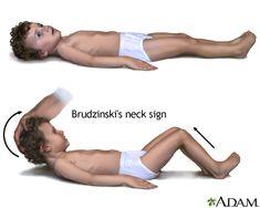 Brudzinskis sign of meningitis