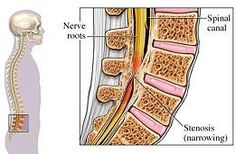 """Spinal stenosis is a narrowing of the spinal canal and foramen, which results in """"choking"""" of the spinal cord and/or nerve roots.    Stenosis usually involves the narrowing of:   The spinal canal in the centre of the column of bones (spinal column) through which your spinal cord and nerve roots pass.  The spinal foramen openings between your spinal vertebrae through which nerves leave the spine and go to other parts of the body."""