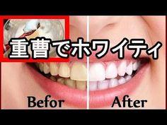 【驚愕】あるもので歯を磨くと、たった一週間で白い歯に!! - YouTube