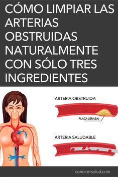 Las arterias son las vías por las que la sangre viaja desde el corazón hasta el resto del cuerpo. Algunas veces, la genética, una enfermedad crónica o una alimentación deficiente pueden hacer que las arterias se obstruyan. Los niveles altos de colesterol juegan un papel importante, ya que esta sustancia grasa no se