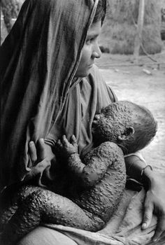 BANGLADESH. One of the last Small Pox cases. 1972. Chris Steele-Perkins...thank the LORD for vaccines & preventing anymore babies from having this.