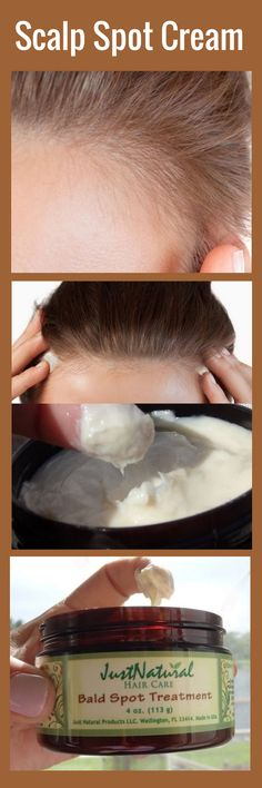 Use when experiencing early stage male or female baldness and Alopecia.