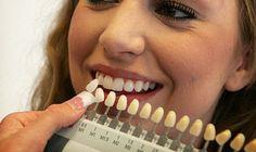 I denti tendono a scurire gradualmente con l'età, ma ci sono anche casi di ingiallimento precoce. Ecco 18 rimedi casalinghi per sbiancare i denti senza l'aiuto del dentista.