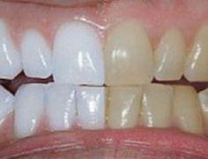 Ele misturou 2 ingredientes e passou nos dentes. O resultado: dentes brancos como nunca! - Tudo dicas