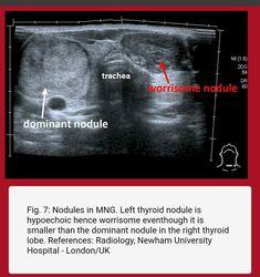 Thyroid Ultrasound, Ultrasound Sonography, Thyroid Nodules, Newham, Radiology, Nursing, Medical, Thyroid, Medicine