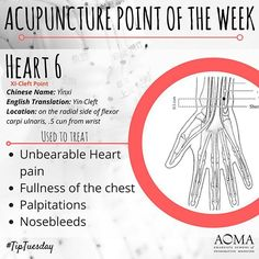 #WellnessWednesday: #Acupuncture Point of the Week, Heart 5!
