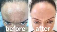 Get rid of melasma Nasolabial Folds, Facial Exercises, Best Oils, Normal Skin, Face Serum, Beauty Skin, Helpful Hints, Top