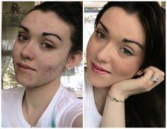 Scopri in quest'articolo  come sconfiggere l'acne in modo naturale grazie al #ganodermalucidum