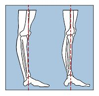 Managing Knee Hyperextension in Dancers | The Dance Training Project