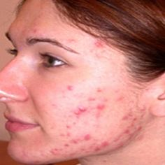 Herbal Remedies For Hormonal Acne - Treatments And Cure For Hormonal Acne | Home Remedies, Natural Remedy